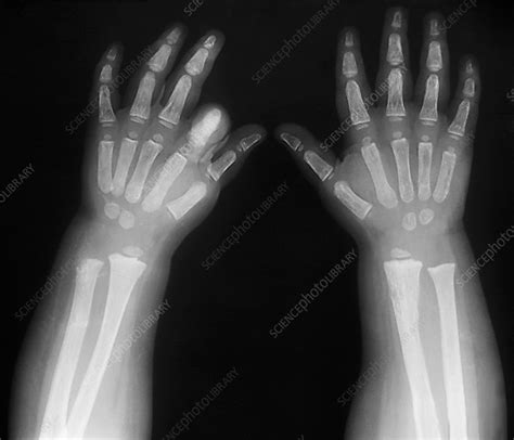Hypothyroidism, X-ray - Stock Image M170/0385 - Science
